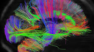 scans reveal intricate brain wiring bbc news Human Brain Diagram Brain Wiring Diagram #37
