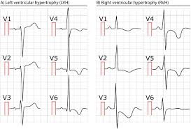 Left Vs Right Heart Failure Chart Right Ventricular Hypertrophy Rvh Ecg Criteria Clinical