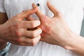 home remes the itchy irritation of eczema