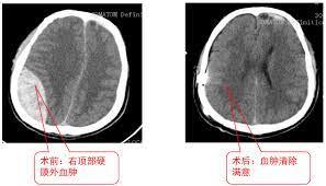 硬 膜 外 血腫
