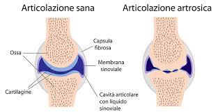 Risultati immagini per artrosi nello sportivo
