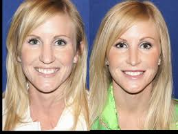 Image result for Austin Cosmetic Surgery Carlotti