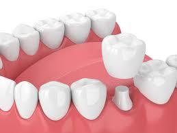Tooth Crowns in Dublin D4 | Specialist Dentists | Pembroke Dental
