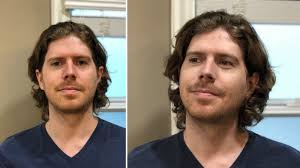 photo patrick allan left before with blemishes and uneven skin tone right after