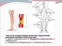 РОЛЬ СЕСТРИНСКОЙ ПЕДАГОГИКИ В ПОВЫШЕНИИ ЭФФЕКТИВНОСТИ ПРОФИЛАКТИКИ  Частота атеросклеротических поражений артерий нижних конечностей 1 аорто подвздошная 2 бедренно