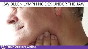swollen lymph nodes under the jaw