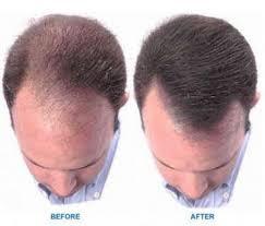 receding hairline treatment