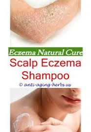 Pinterest | 2799 Best Eczema Creams images | Best cream for eczema ...