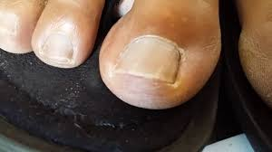 solved home remedy cure for toenail fungus cure nail fungus with vicks vaporrub