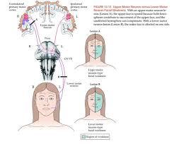 abdulaziz almubarak on twitter nerve upper vs lower motor neuron lesion neuroscience t co oe45v4nssh