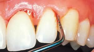 Resultado de imagen para Remedios para piorrea, periodontitis o enfermedad periodontal