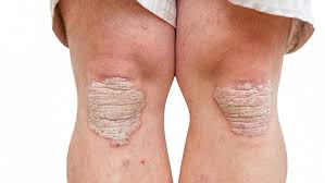 Psoriasis Treatments Insufficient For One In Five Patients Study