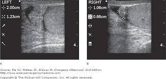 testicular rupture symptoms. image not available. testicular rupture symptoms