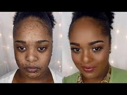 how to cover up acne scars and dark spots 2016 really nice makeup transformation