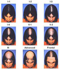 tests for diagnosing women s hair loss