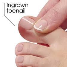 if left untreated ingrown toenails can get worse resulting in extra tissue growth which can cause pain bleed easily and possibly get infected