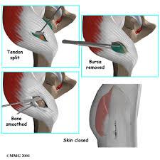 tensor fasciae latae hip pain treatment