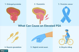 Overview Of The Prostate Specific Antigen Psa Test