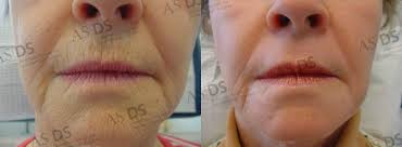 before left and after right 3 months after croton oil phenol deep chemical l peri lines wrinkles
