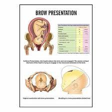 Baby Head Engaged Chart Midwifery Child Health Nursing Charts Inc02 Uterine