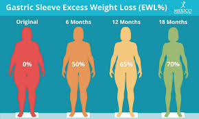 gastric sleeve excess weight loss ewl