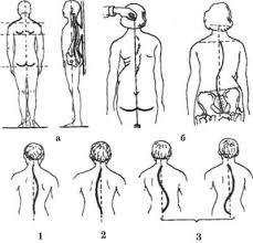 Реферат Сколиоз Лечебная физкультура при сколиозе com  Сколиоз Лечебная физкультура при сколиозе