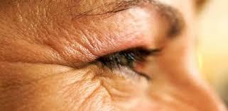 Image result for sagging eyelids image