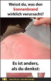 Weisst Du Eigentlich Warum Ein Sonnenbrand Wirklich Entsteht