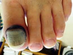 爪 下 血腫