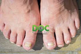 cine triathlete who treats runners and triathletes and here are the top 5 mistakes i see runners make that can lead to funky looking toenails
