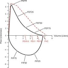 Flow Volume Chart What Is A Pft Test Morgan Scientific Pulmonary Function