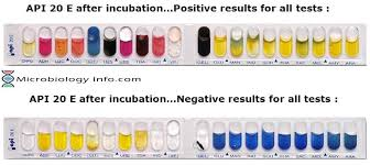 Enterobacteriaceae Biochemical Reactions Chart Api Analytical Profile Index 20e Test Procedure Uses