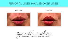 treatments injectable aesthetics