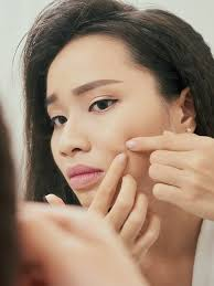 is popping your pimples really that bad