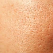 Grove poriën verkleinen met een (goedkope) crème Producten Furrow
