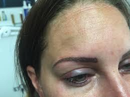 Kosmetický Salon Korektivní Dermatologie Masáže Elektrická