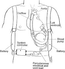 F8 large mechanical circulatory support and cardiac transplantation 1954 mg tf wiring diagram