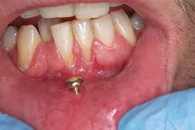 Facial Piercings Affiliated Dentists Sc