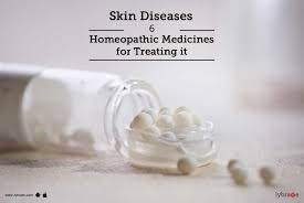 Skin Diseases - 6 Homeopathic Medicines for Treating it - By Dr ...