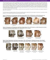 Breast Enhancement Size Chart Motiva Implant Matrix Silicone Breast Implants Summary Of