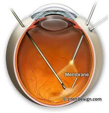 retinal pucker surgery