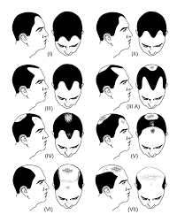 Norwood Scale Procerin For Male Hair Loss