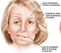 Facial Nerve problems and Bell's Palsy - medicineNet