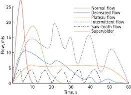 Practical Uroflowmetry Jarvis 2012 Bju International