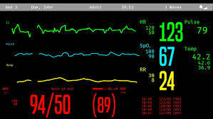 Medical Monitoring Icu Screen Monitoring Dying Patient Stock Footage Video 100 Royalty Free 20286238 Shutterstock