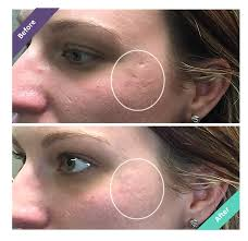the first acne concealer that fills in ice pick rolling boxcar acne scars dermaflage