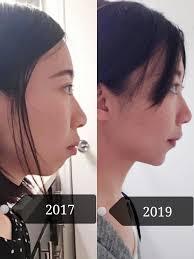 2 Yr Braces Progress Overbite And Deepbite Correction 4