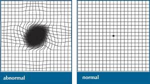 Eye Chart Test For Macular Degeneration Macular Degeneration Diagnosis Efei
