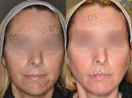 what are the potential plications of laser light therapy