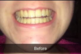 Tooth Whitening At Eccleshill Dental Dentist Bradford